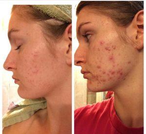 Cystic Facial Acne